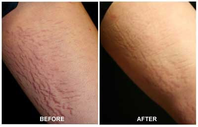 Is Laser Stretch Mark Removal Painful